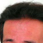 【意外と進んでる】20代後半の男性がやるべき5つの頭皮のケア